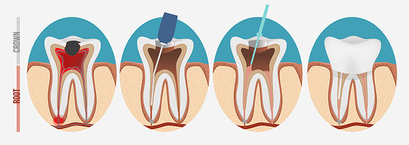 root canals lehigh valley