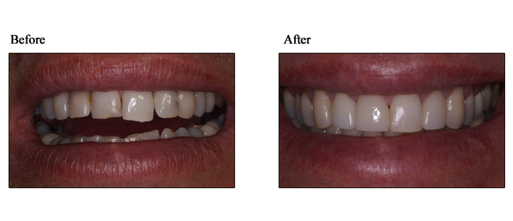 veneers dentist lehigh valley