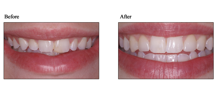 porcelain veneers lehigh valley